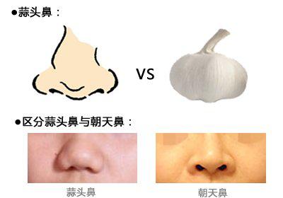 蒜头鼻整形