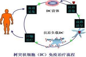 DC细胞治疗方案