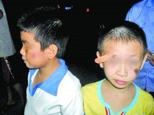 8岁学生称遭老师掌掴 眉角开裂皮肉外翻(图)