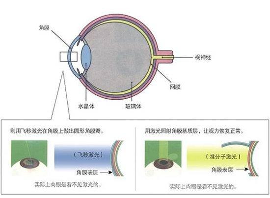 重庆近视手术:飞秒激光近视技术全球权威认可_大渝网_腾讯网