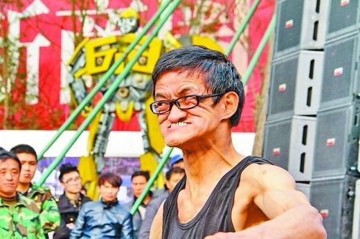 重庆有个 烂脸王 他让鼻子像张纸贴在脸上图片