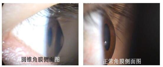 如果你有这些病想做近视手术  眼科医生会将你拒之门外