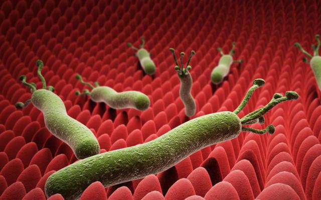 如何判断是否感染幽门螺旋杆菌?细心能看出