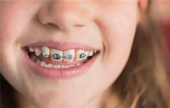 20多岁还能矫正牙齿吗?医生:最佳年龄是这样的