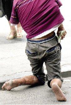 乞丐将胳膊塞进T恤装残疾 趁人不备装钱(图)