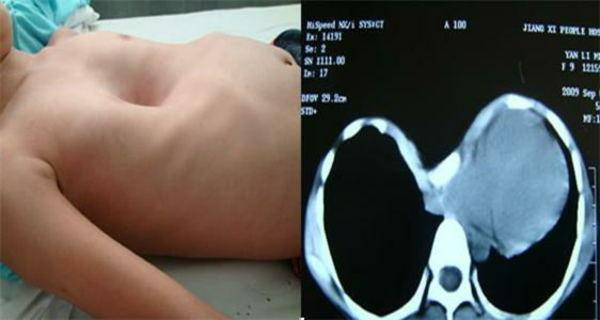 微创NUSS手术有效治疗漏斗胸 新桥医院专家支招