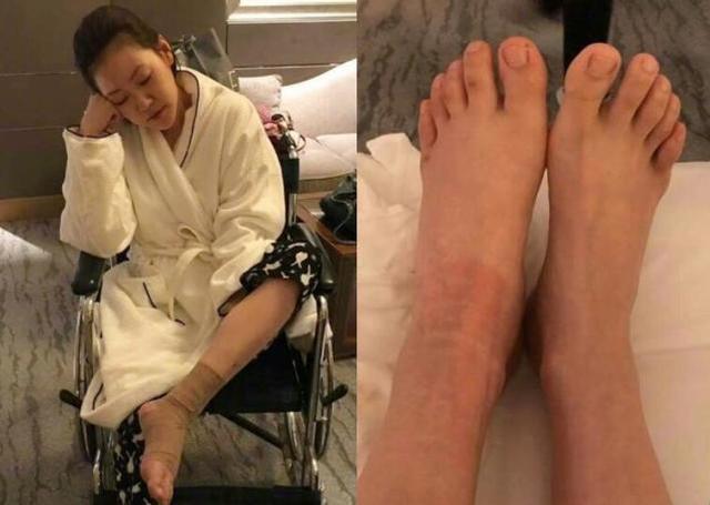 小S坐着轮椅晒红肿伤脚 网友:被家暴啦?
