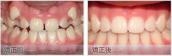 儿童牙齿矫正需要拔牙吗?