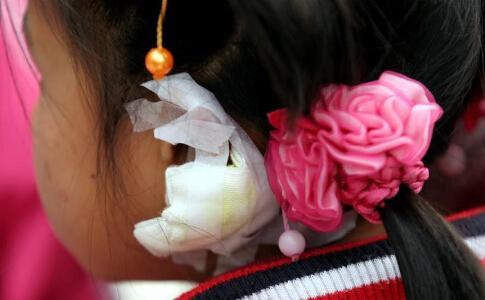 小学女生因未完成作业 惨遭老师拧耳朵缝十针