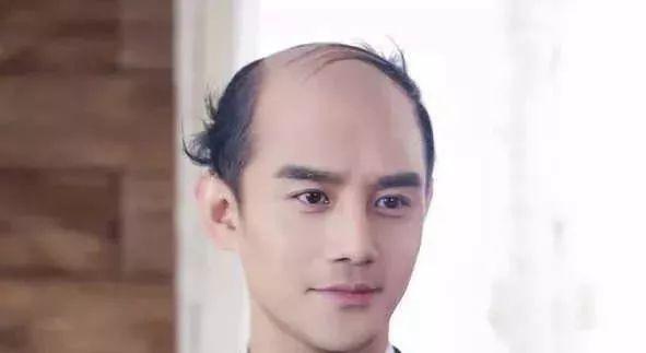 脱发的人更长寿 网友笑哭:秃着活那么久有啥意思