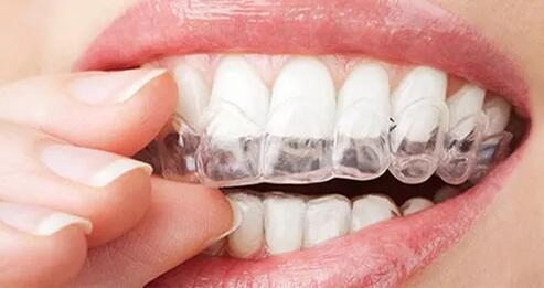 为啥你自拍这么丑 牙科医生发话:你缺少治愈系笑线哇!
