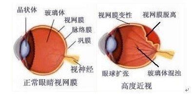什么方法能控制不断增高的近视