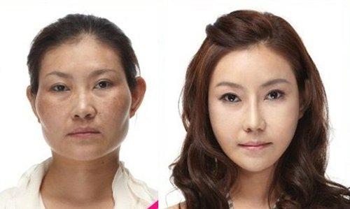 学生整形为求职 惊叹韩国整容术前后对比图片