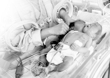 """""""双头女婴""""身患疾病10多种 她俩暂时不分离"""