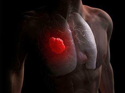 肺癌发病率死亡率均第一你知道如何防如何治吗?
