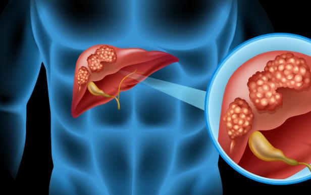2类人容易患肝癌