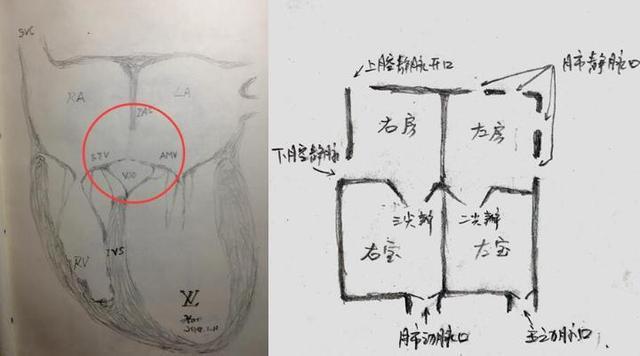 医生秒变画家 灏心医生手绘图片科普心脏病知识