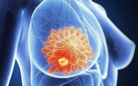 乳腺癌发病有8个诱因  其中6个因素应尽量避免