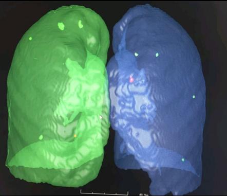 副肺多发13个磨玻璃结节 AI技术援助医生诊断和稀准切摒除