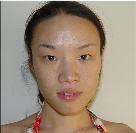 齐鲁标准美女 董洁整形手术前后
