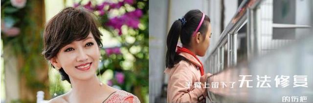赵雅芝下月来渝看望合川疤痕女孩 邀爱心妈妈助力疤痕孩子