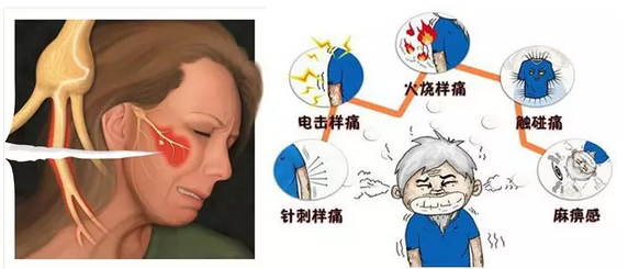 男子遭遇天下第一痛误拔两颗牙 神秘小球囊轻松搞定
