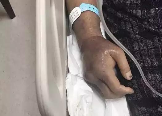 女子只是碰了它一下 至今仍在医院抢救
