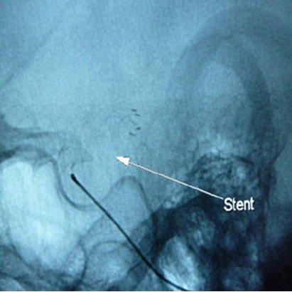 三峡中心医院应用介入技术治愈脑动脉瘤患者