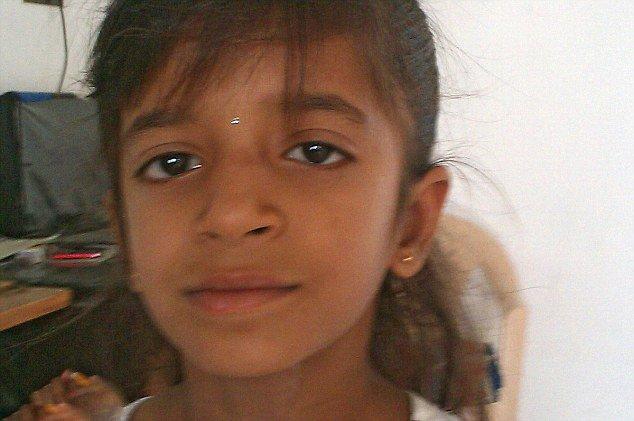 拉特邦,医生从12岁女孩希莱亚 达尔吉(Shreya Darji)的耳洞中先