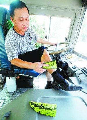 热晕了!引擎太烫 公交司机穿厚裤满腿长痱子