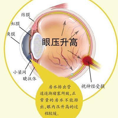 40岁以上青光眼患病率3.6% 致盲率达30%