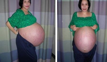 年轻母亲 5