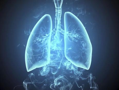 47岁男子胸背痛两月 竟是肺结节变癌惹的祸