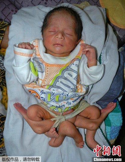 巴基斯坦男婴患遗传疾病 有6条腿腹部长出4肢