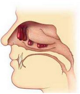 慢性鼻炎会遗传吗?
