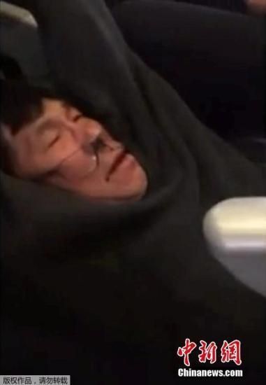 资料图片:遭受美联航暴力驱赶的亚裔乘客。