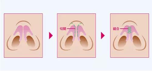 鼻翼缩小术-大多数的亚洲人都有必要做