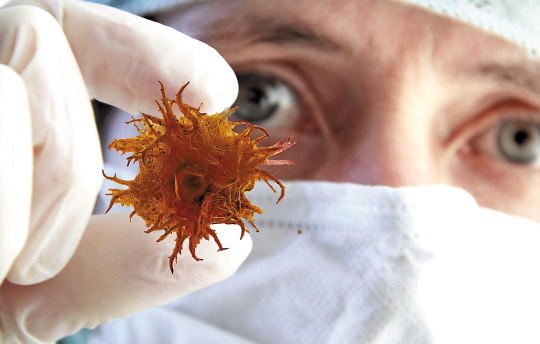 最新大数据告诉你:重庆人更容易患什么癌?