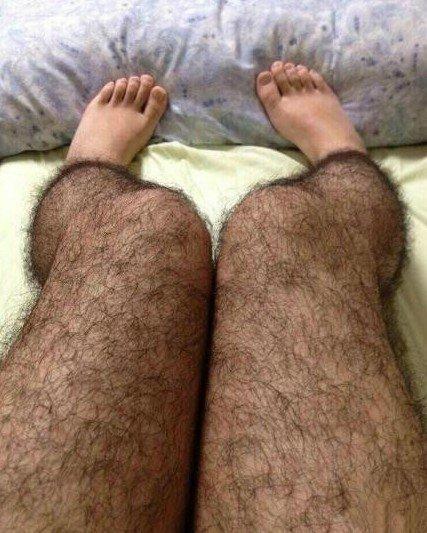 男孩腿毛长且多的原因