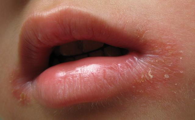 4岁宝宝患口角炎1月未愈 原来原因出在这