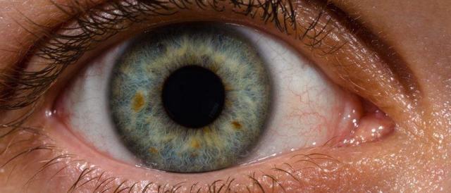 这脑洞我给满分 尼康将为治疗眼病提供成像技术