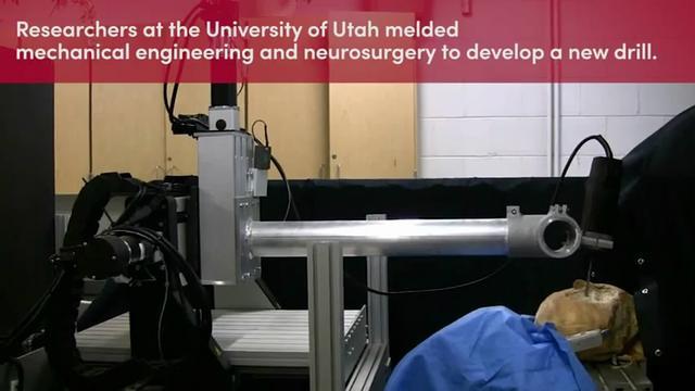 未来开颅这活就交给机器人吧 比医生快了50倍