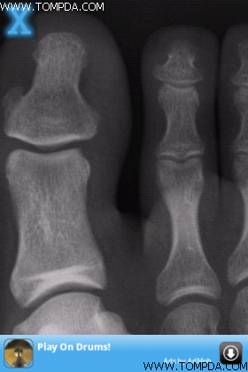手机也能X光扫描 iPhone软件X-Ray