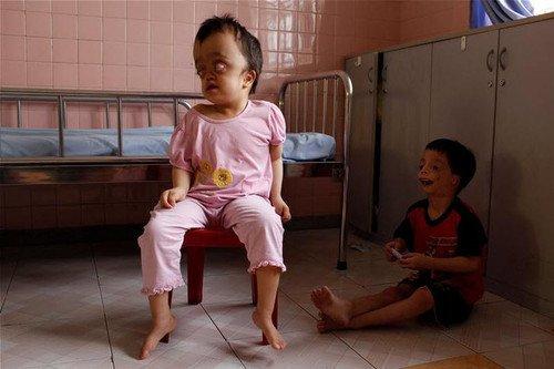 黑镜头 越战毒气残害下的畸形儿童