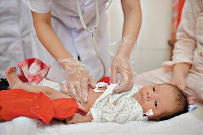 新生男婴生殖器肿大