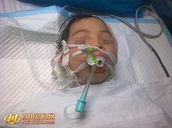 四川10岁女孩被养母砍成重伤 已脱离生命危险