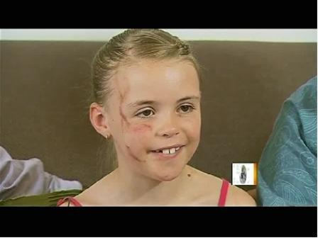 澳7岁女孩遭袋鼠袭击 浑身是伤仍立志当兽医