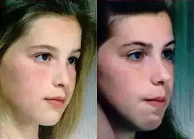 孩子越长越丑 只因为一个坏习惯