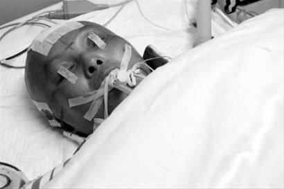 阿穆隆酒驾案传噩耗 伤者已被医院建议拔管(图)