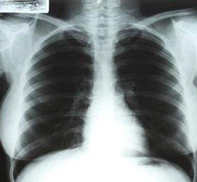 玛丽莲梦露生前X光片将拍卖 价值近40万美元